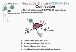 COVID 19 & Hepatitis B Infections