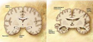 A Cause Of Alzheimer's Disease?